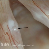 Epidermoid Cyst, Open