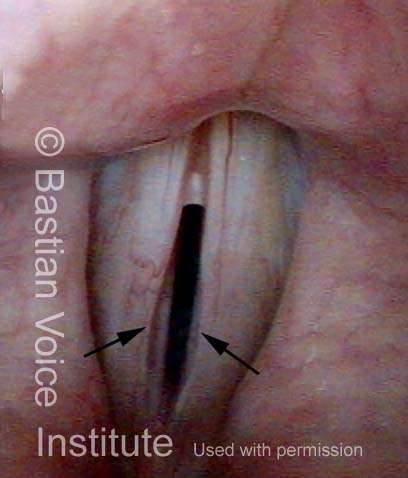 Glottic furrow (2 of 2) Same patient during phonation. Such patients may have a lot of bowing as a concomitant finding, but the two edges of the furrow are seen on each fold, at arrows (Lab).