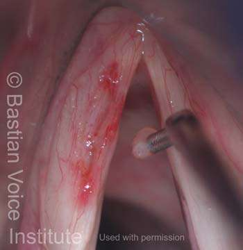 Cyst removal (6 of 7) The flap is released and returned to its original position; the incipient sulcus is still seen.